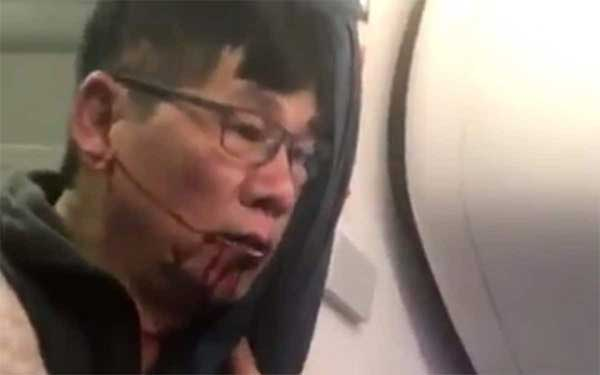 United Airlines Flight 3411 Marketing Lessons